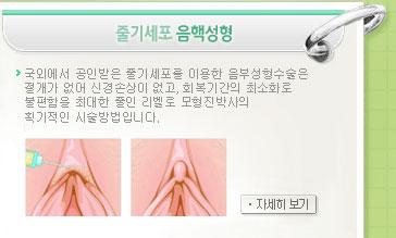 줄기세포 음핵성형